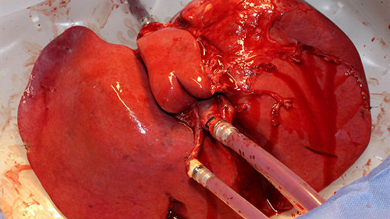 A newly treated liver that was once damaged. Pic: USZ