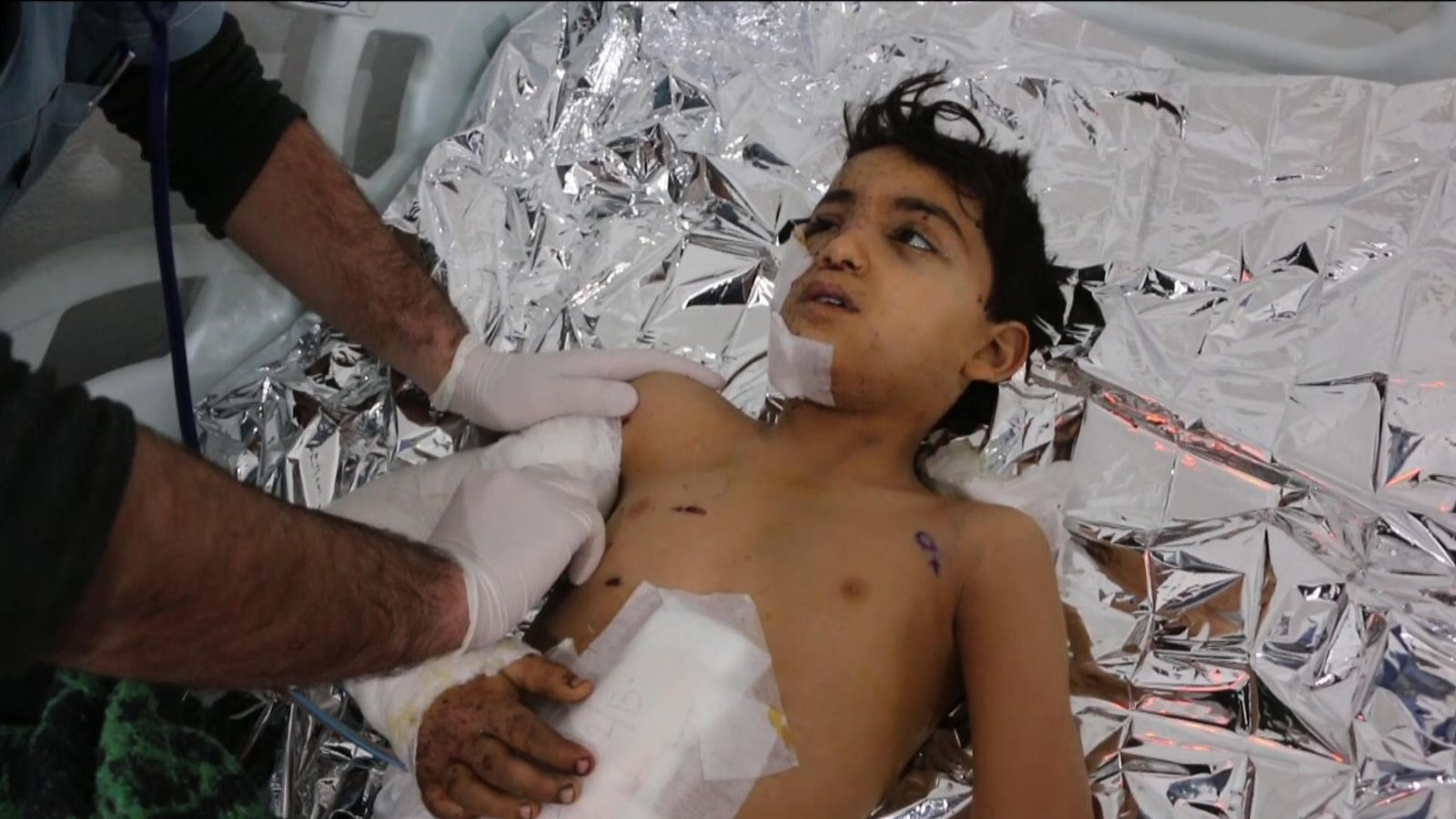 Child survivor of Idlib bombing: 'May Allah kill Assad and Russia'