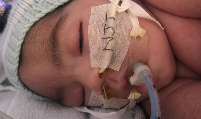 Midrar Ali: Life support for brain-damaged baby can end, court rules