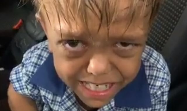 Mother shares video of distraught son, 9, bullied over his dwarfism