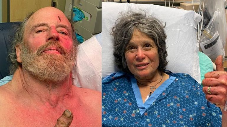 Ian Irwin, 72 and Carol Kiparsky, 77, gave the thumbs up from hospital where they are recovering. Pic: Marin County Sheriff's Office