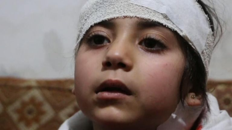 Children hit in Syria airstrike describe their experiences