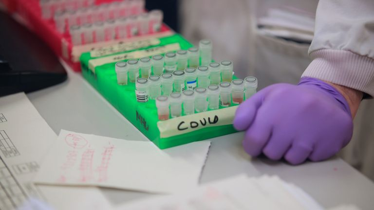 Samples are tested for respiratory viruses, which procedure will be used to test the novel coronavirus COVID-19, during a visit by Britain's Chancellor of the Exchequer Rishi Sunak to the pathology labs at Leeds General Infirmary to highlight the record infrastructure spend after yesterday's budget, in Leeds, Yorkshire on March 12, 2020. (Photo by Danny Lawson / POOL / AFP) (Photo by DANNY LAWSON/POOL/AFP via Getty Images)