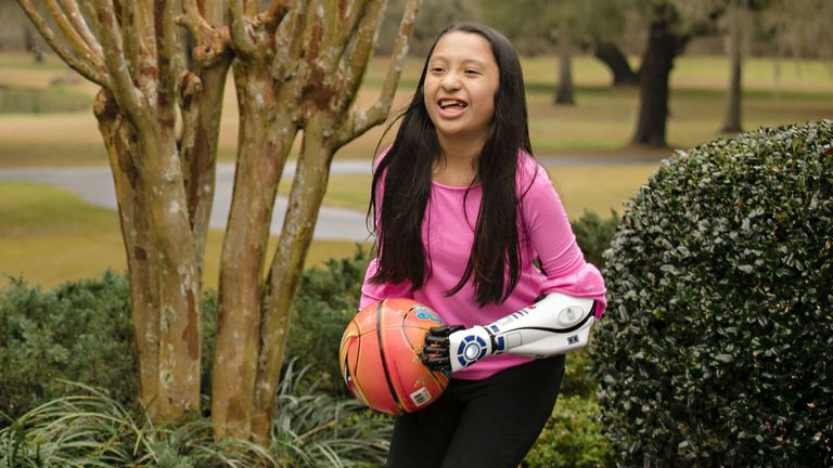 11-year-old Bella Tadlock, who got a phone call from Star Wars actor Mark Hamill after receiving a bionic arm in the style of R2-D2 from Open Bionics