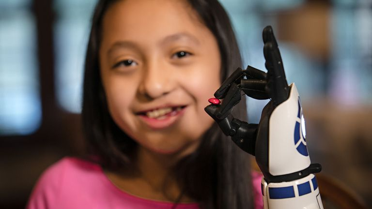 11-year-old amputee Bella Tadlock who got a phone call from Star Wars actor Mark Hamill after receiving a bionic arm in the style of R2-D2 from Open Bionics
