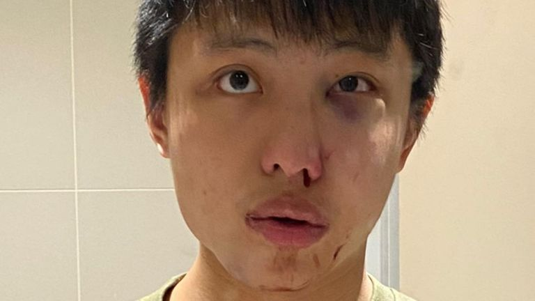 Jonathan Mok said he may need reconstructive surgery
