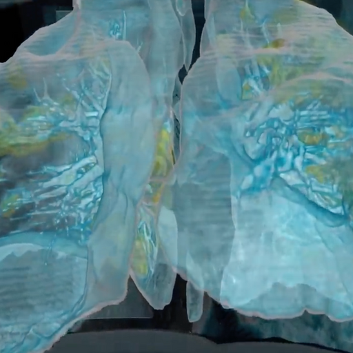 Images reveal how COVID-19 'destroys' the lungs