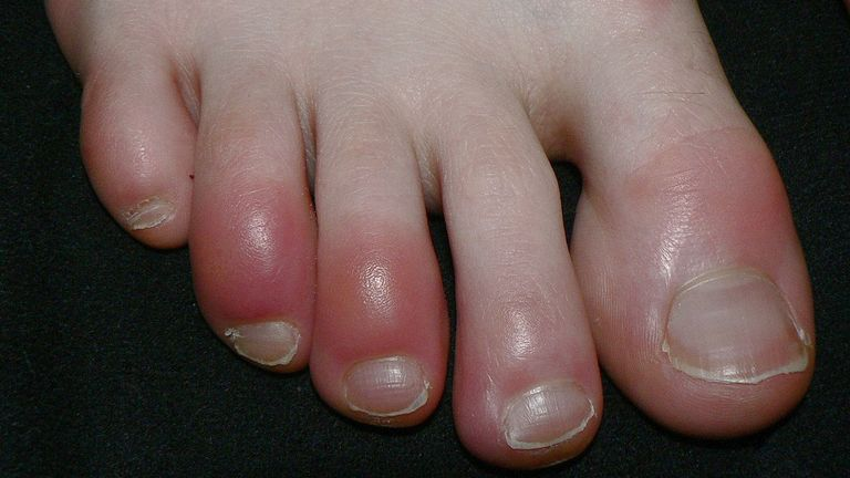 Chilblains may affect the hands or the feet. Pic: Sapp