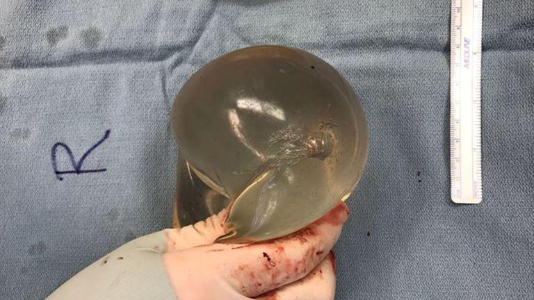Vista del implante mamario derecho con daño por trayectoria de bala