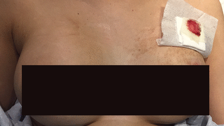 Los implantes mamarios de la mujer le impidieron morir