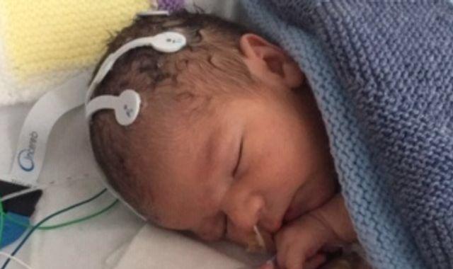 British baby is world's first to get cannabis-derived medicine to prevent seizures