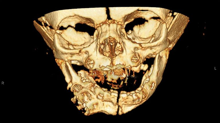 An X-ray image of the infant. Pic: BMJ Journals