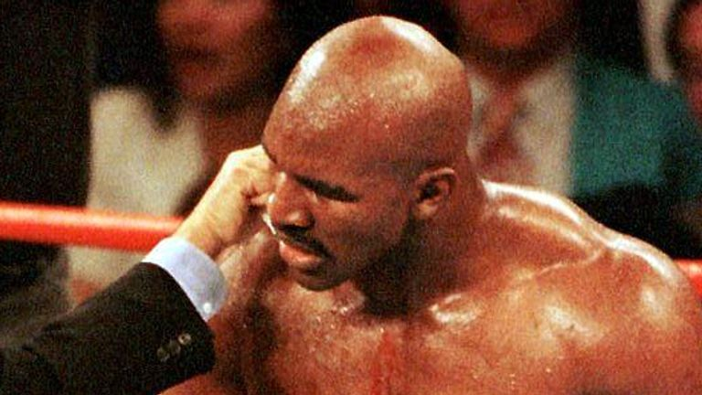 June 1997: Blood pours from the ears of Holyfield after being bitten by Tyson