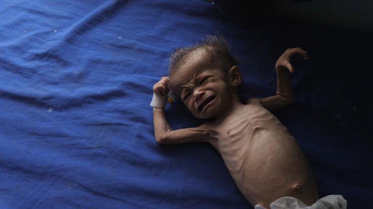 Yemen: Emaciated baby, generic