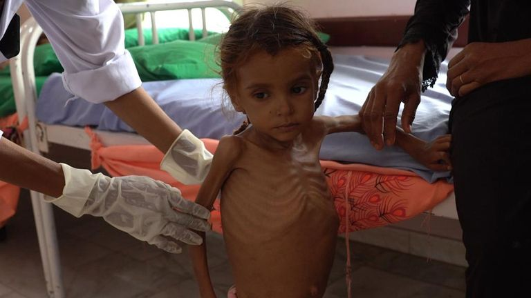 Emaciated child receives treatment at hospital in Taiz