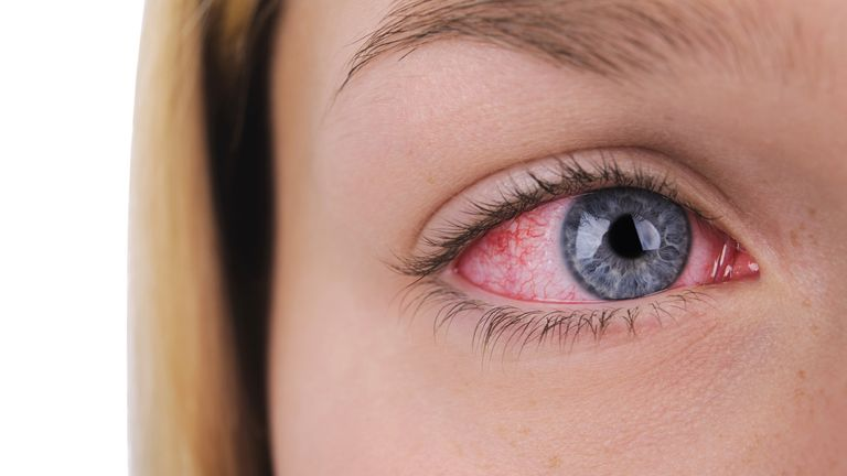 Conjunctivitis can cause red and itchy eyes. File pic