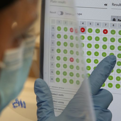 Data on test and trace scheme raises worrying questions