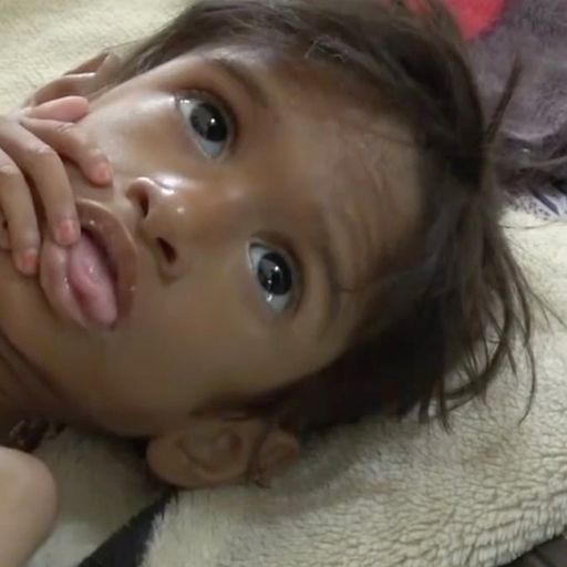 'This is the darkest moment I have ever seen': UN official describes crisis in Yemen