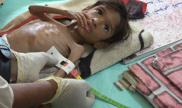 Yemen: 'Millions of children could die unless the world wakes up to what's happening here'