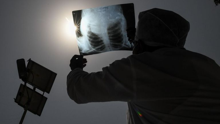 A Hindu devotees observes an annular solar eclipse through a X-Ray film atDurgiana Temple in Amritsar on June 21, 2020. (Photo by NARINDER NANU / AFP) (Photo by NARINDER NANU/AFP via Getty Images)
