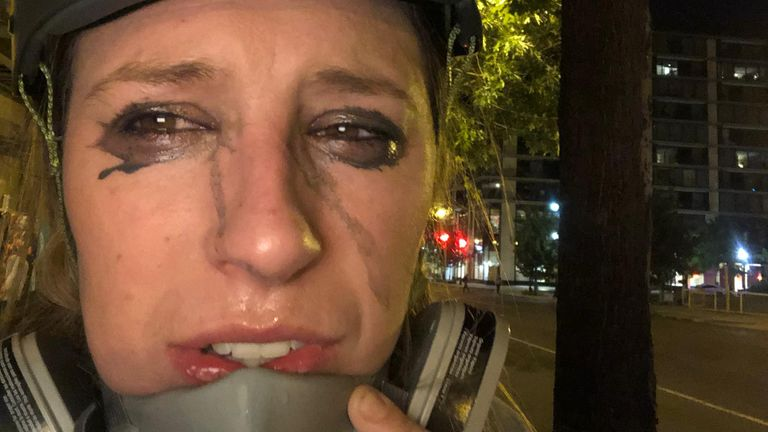 Cordelia Lynch after being hit by tear gas in Washington DC
