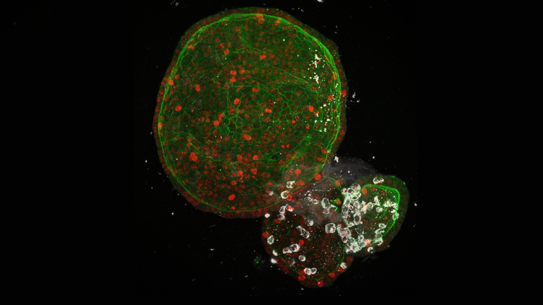 Human intestinal organoids infected with SARS-CoV-2 (white). Pic: Joep Beumer/Clevers group/Hubrecht Institute
