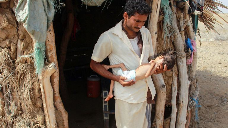 The father of Salwa Ibrahim, a five-year-old girl suffering from acute malnutrition, holds her at the entrance of their house