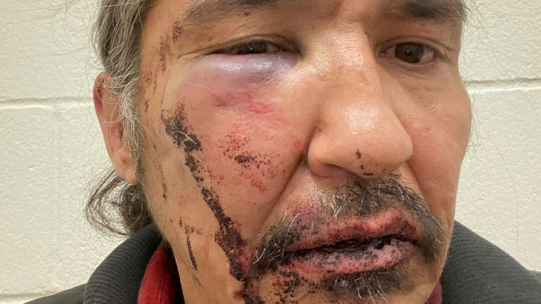 Chief Allan Adam of Athabasca Chipeywan First Nation displays his wounds that he says were caused by Royal Canadian Mounted Police (RCMP) officers of the Wood Buffalo detachment in an incident in Fort McMurray, Alberta, Canada March 10, 2020. Picture taken March 10, 2020. Courtesy of Allan Adam via REUTERS. NO RESALES. NO ARCHIVES. THIS IMAGE HAS BEEN SUPPLIED BY A THIRD PARTY. THIS IMAGE WAS PROCESSED BY REUTERS TO ENHANCE QUALITY, AN UNPROCESSED VERSION HAS BEEN PROVIDED SEPARATELY. Chief Alla