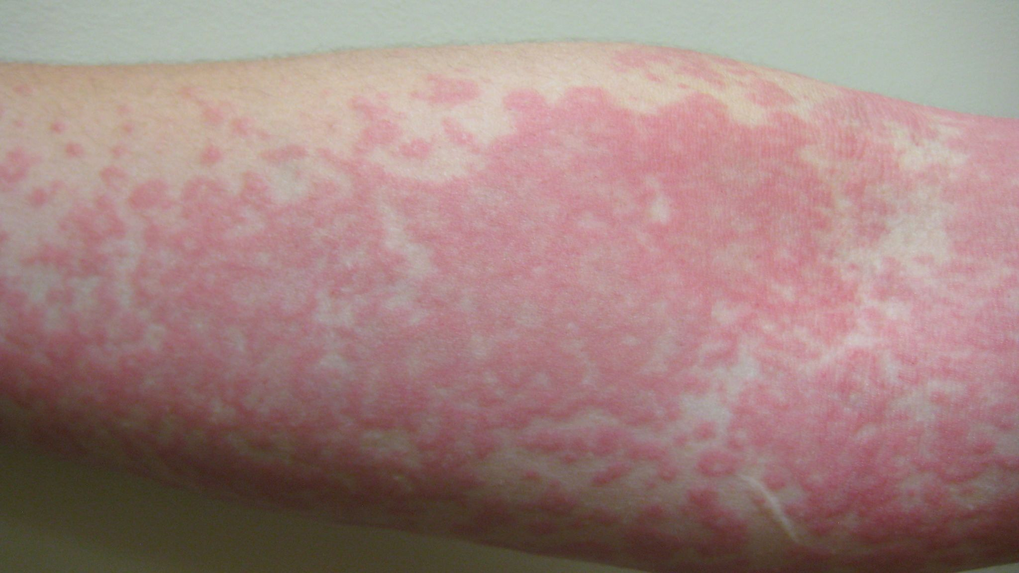 Coronavirus: Skin rash can be only COVID-19 symptom and should be fourth  key sign, study finds | UK News | Sky News