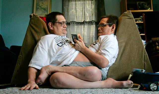 Ronnie and Donnie Galyon: World's longest-surviving conjoined twins die at 68