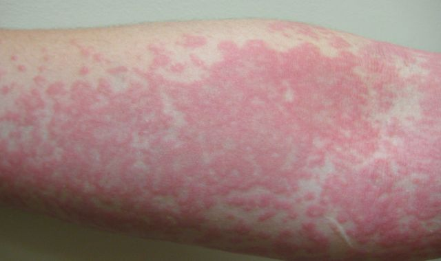 Coronavirus: Skin rash can be only COVID-19 symptom and should be fourth key sign, study finds