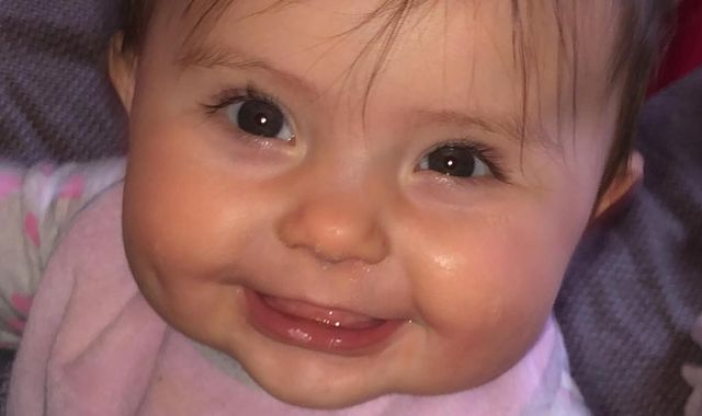 Coronavirus: 'Running out of options' - Baby girl may need lifetime of therapy as pandemic delays surgery
