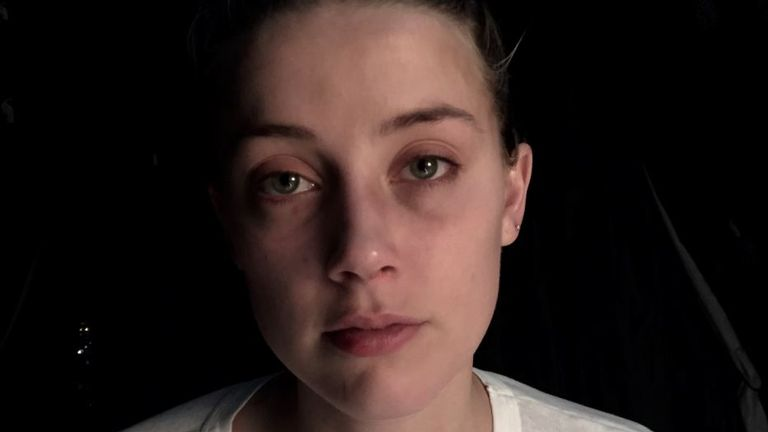 Photos of Amber Heard with bruises were shown to the court