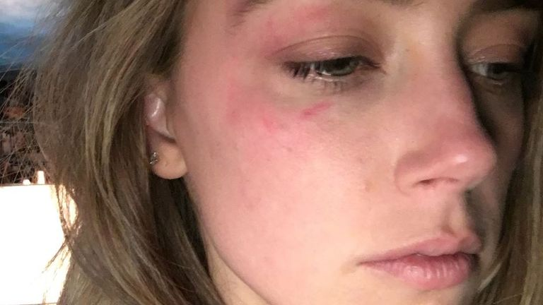The High Court was shown this picture of Amber Heard's alleged injuries following an incident in May 2016