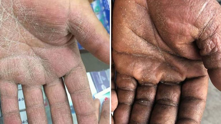 A comparison of the fungal infection tinea manuum on different skin colours (Pic: Brown Skin Matters)