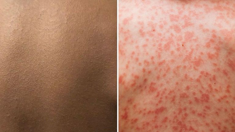 A comparison of Kawasaki disease (Pic: Brown Skin Matters)