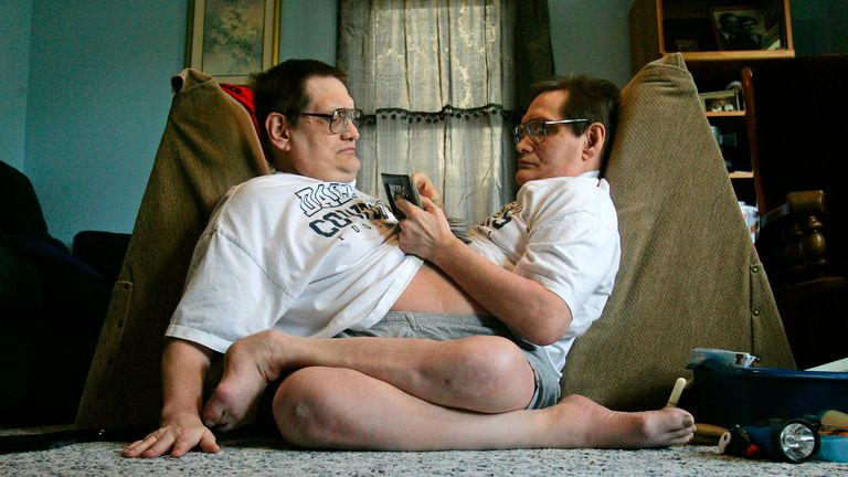 COJOINED TWINS..Siamese twin brother Ron Galyon, left and Don relax in their Dayton home, Tuesday, May 5, 2009. The brothers are currently the world's oldest living conjoined twins at 58 years old.  (AP Photo/Jim Noelker)