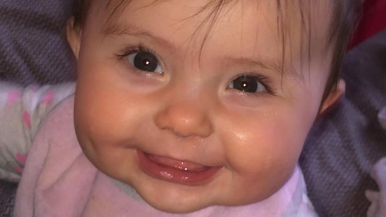 Around 1,200 babies are born with a cleft each year in the UK according to the charity CLAPA, 45% of them with a cleft palate