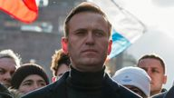 Alexei Navalny is fighting for his life in hospital