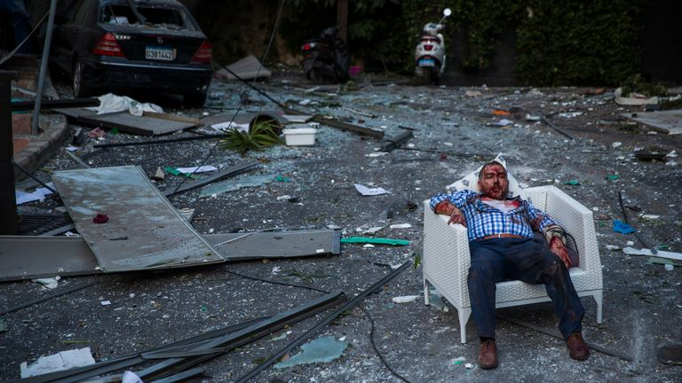 BEIRUT, LEBANON - AUGUST 04: An injured man rests in a chair after a large explosion on August 4, 2020 in Beirut, Lebanon. Video shared on social media showed a structure fire near the port of Beirut followed by a second massive explosion, which damaged surrounding buildings and injured hundreds. (Photo by Daniel Carde/Getty Images)