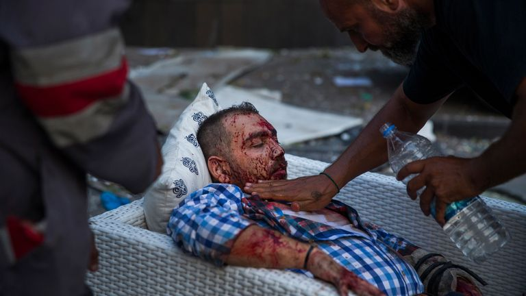 An injured man is treated after the explosion, which has killed dozens of people