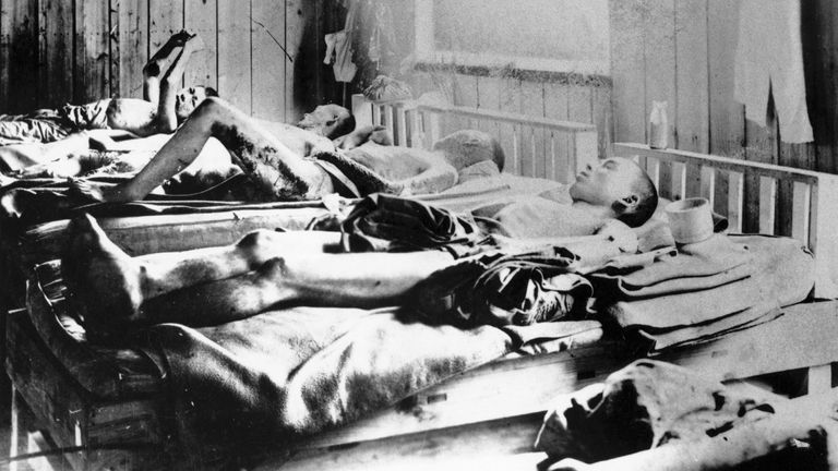 Survivors of the blast suffering from radiation sickness