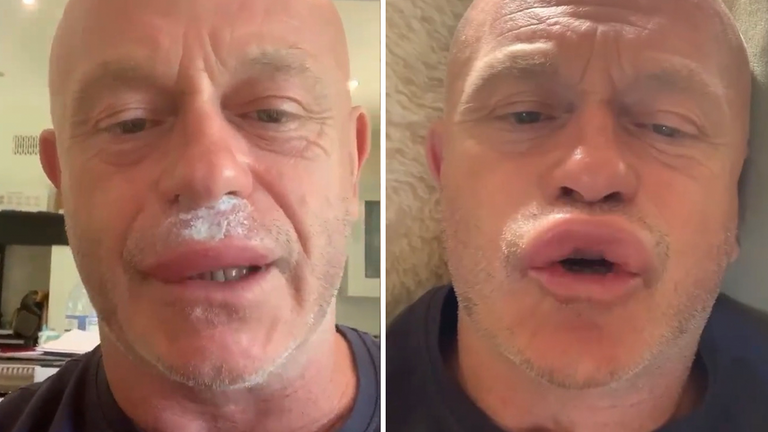 Ross Kemp's face swelled up after a wasp attack. Pic: Instagram/ RossKempTV