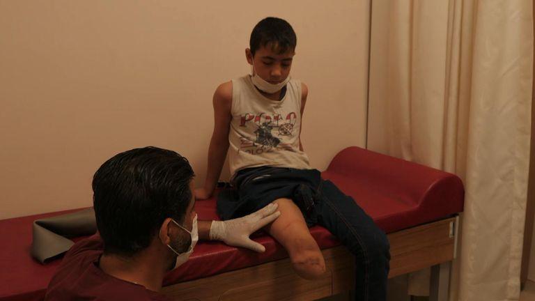 Abdul Rahman, nine, has a prosthetic leg