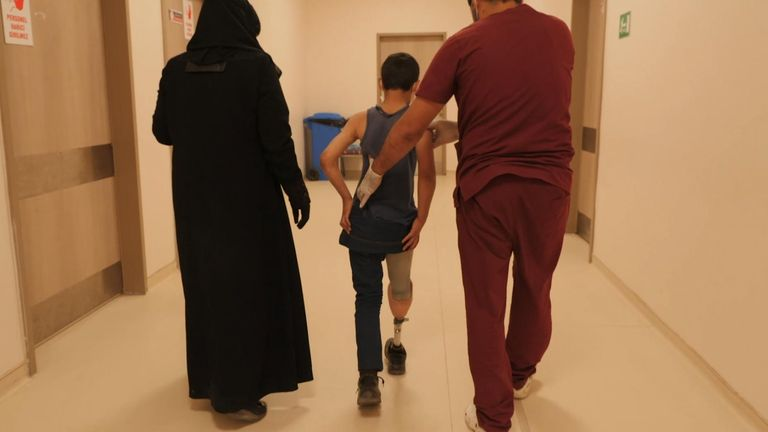 Abdul Rahman now has a prosthetic leg