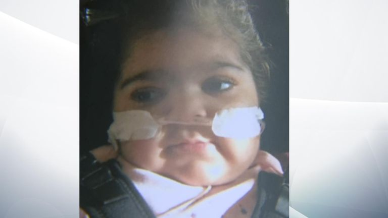 Zainab Abbasi was born with a rare genetic illness