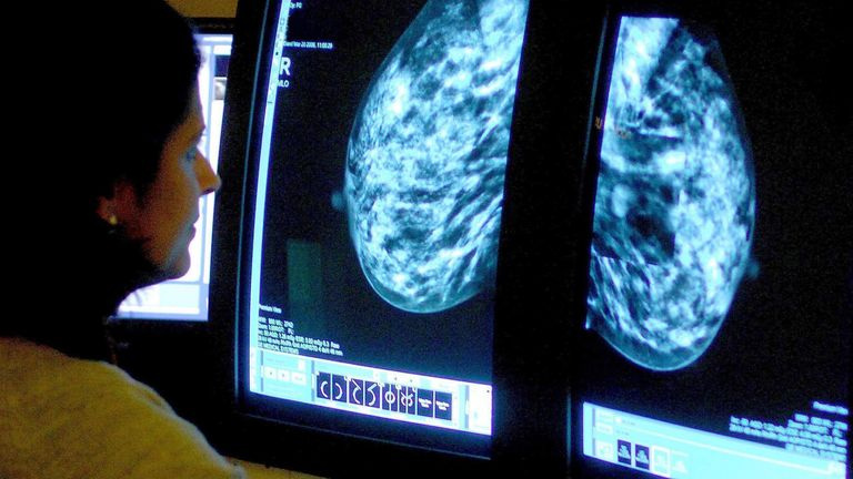 File photo dated 15/06/06 of a consultant analyzing a mammogram as women who have breast implants and go on to have breast cancer have a greater risk of dying from the disease than those without, a new study suggests.