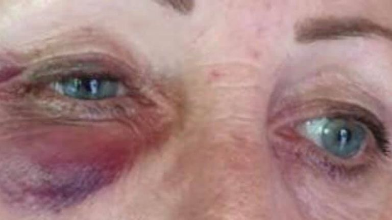 Brenda Fox was assaulted while on duty in Hitchin, Hertfordshire last year. Pic: Kerry Fox