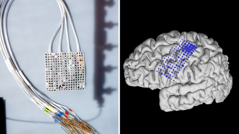An array of electrodes are placed on the surface of the brain. Pic: UCSF