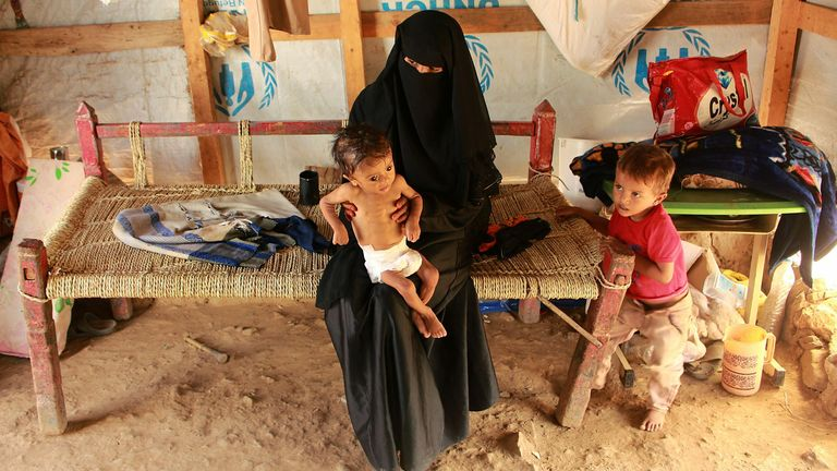 Many children are suffering from acute malnutrition